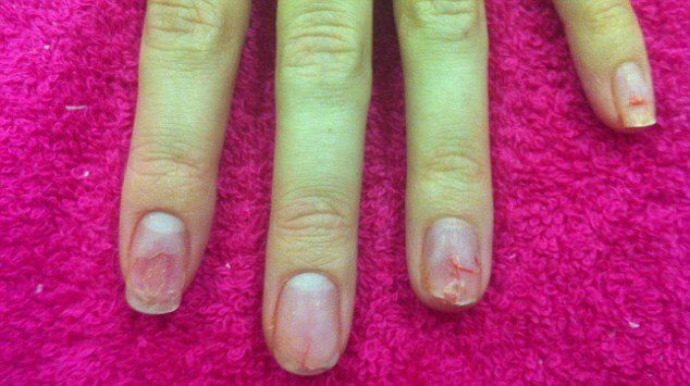 how to repair damaged nails after acrylics